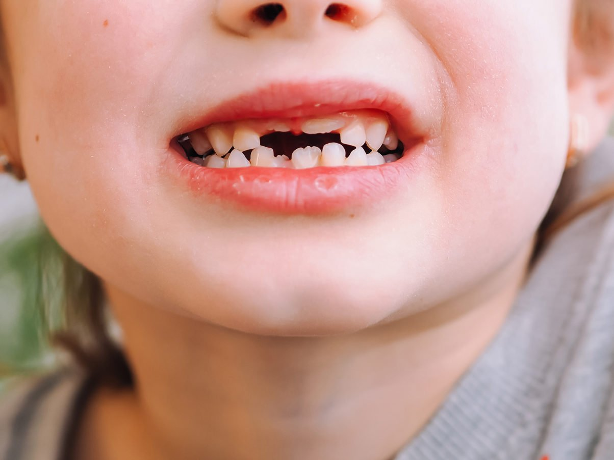 When You Should Expect Your Child's Teeth to Come in & Fall Out