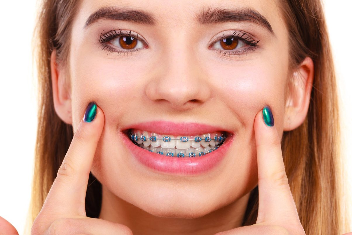 Which Braces are Right for Me?